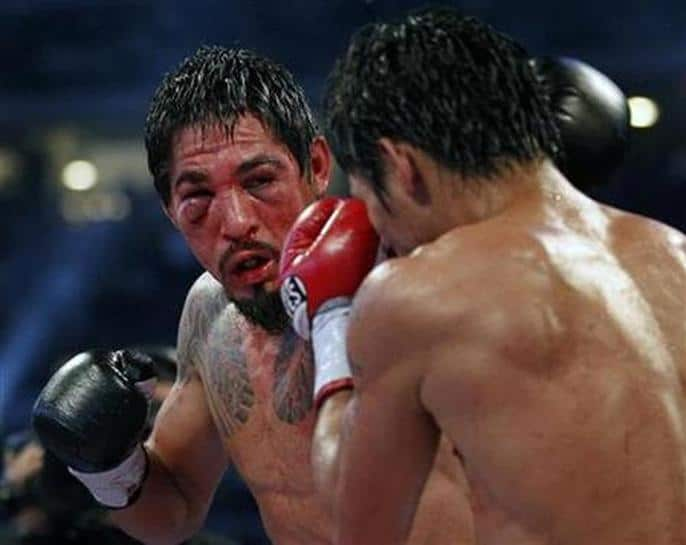 Margarito's eye injury